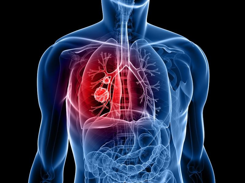Nowa metoda walki z rakiem płuc /©123RF/PICSEL