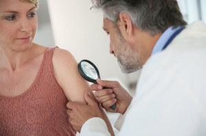Nowa terapia przeciwko czerniakowi wydłuża życie pacjentów o 25 miesięcy