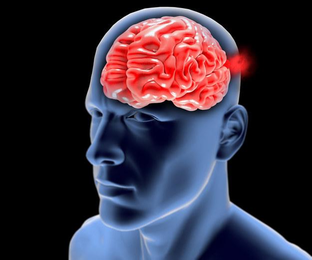 Objawy i leczenie tętniaka mózgu /123/RF PICSEL