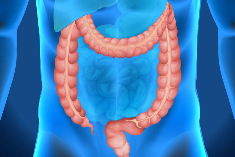 Objawy raka jelita grubego różnią się w zależności od tego, gdzie umiejscowione są zmiany chorobowe /123RF/PICSEL