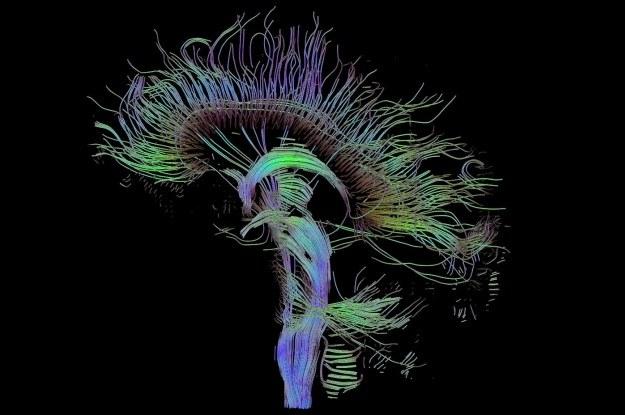 Obrazowanie tensora dyfuzji ujawnia wiele szczegółów mózgu /materiały prasowe