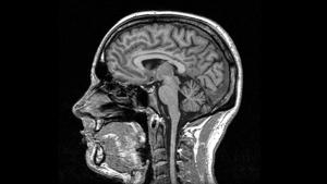 Odkryto na nowo tajemniczą strukturę mózgu