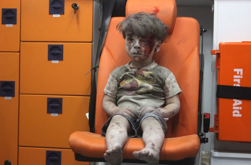 Omran Daqneesh , dziecko uratowane z ruin Aleppo /Mahmud Rslan / Anadolu Agency /East News