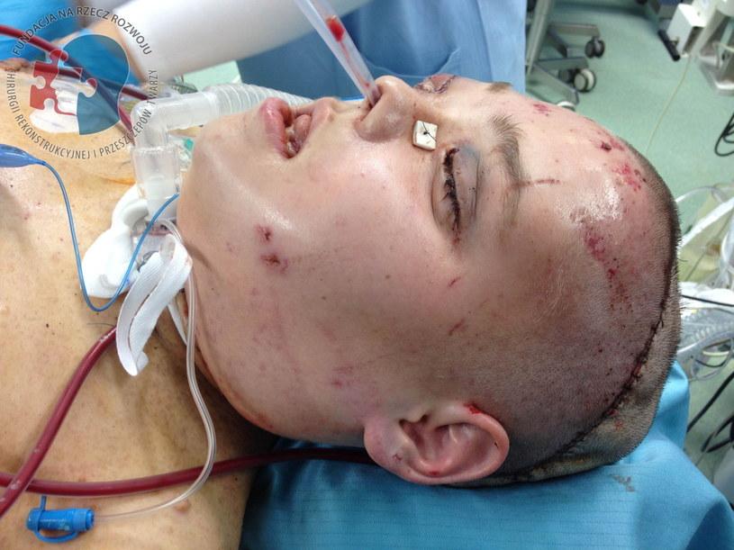 Operacja była drugim całkowitym przeszczepem twarzy wykonanym w Polsce. /PAP