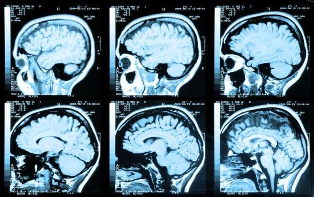 Operacje neurochirurgiczne są w stanie zmienić naszą osobowość /123RF/PICSEL