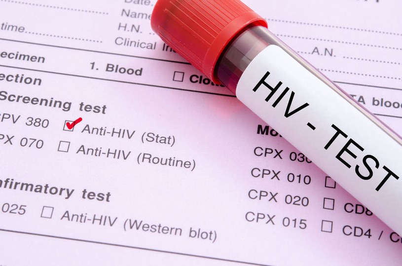 Osoby zakażone wirusem HIV są bardziej narażone na zawał serca /©123RF/PICSEL
