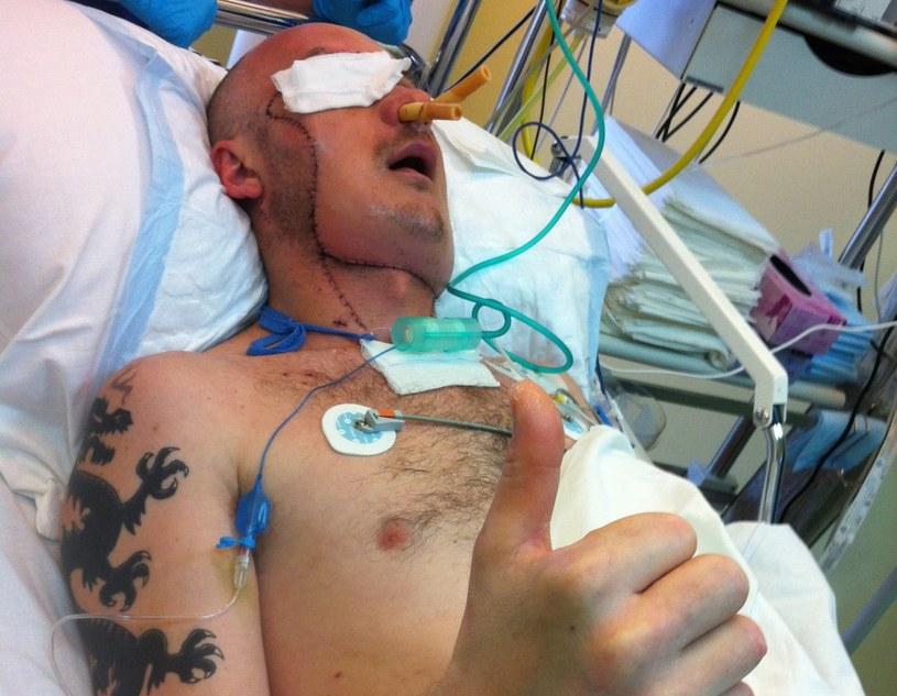 Pacjent po operacji przeszczepu twarzy /Centrum Onkologii w Gliwicach  /PAP