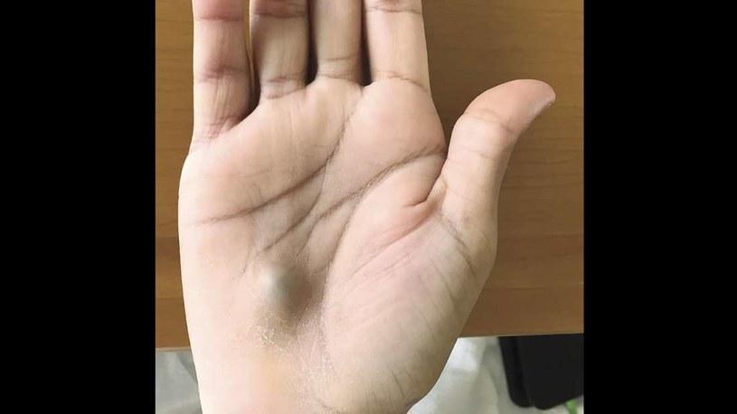 Pacjent trafił do szpitala z taką pulsującą zmianą na dłoni /materiały prasowe