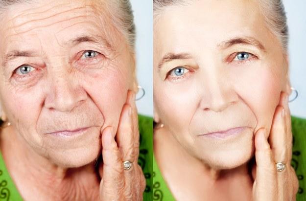 Pamiętajmy o codziennym nawilżaniu skóry /123/RF PICSEL