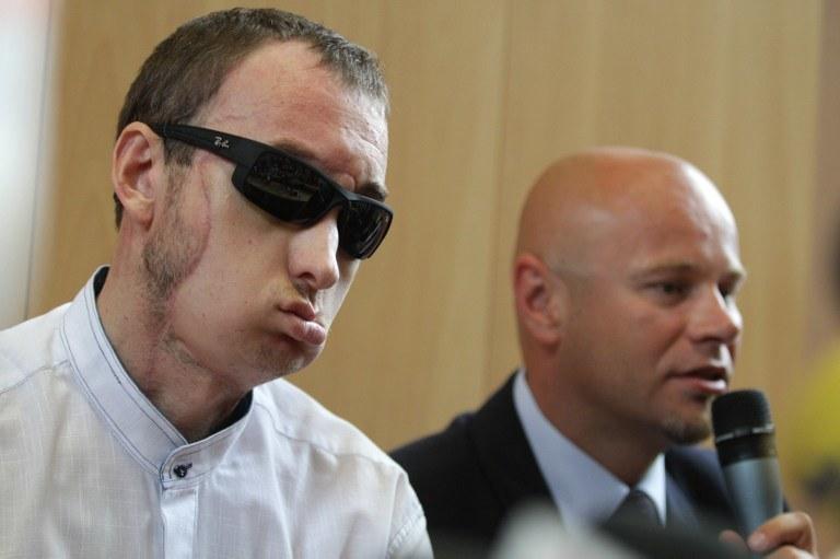 Pan Grzegorz, pierwszy w Polsce pacjent po przeszczepie twarzy /AFP