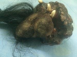 Pasożytniczy bliźniak odnaleziony w brzuchu 18-latka