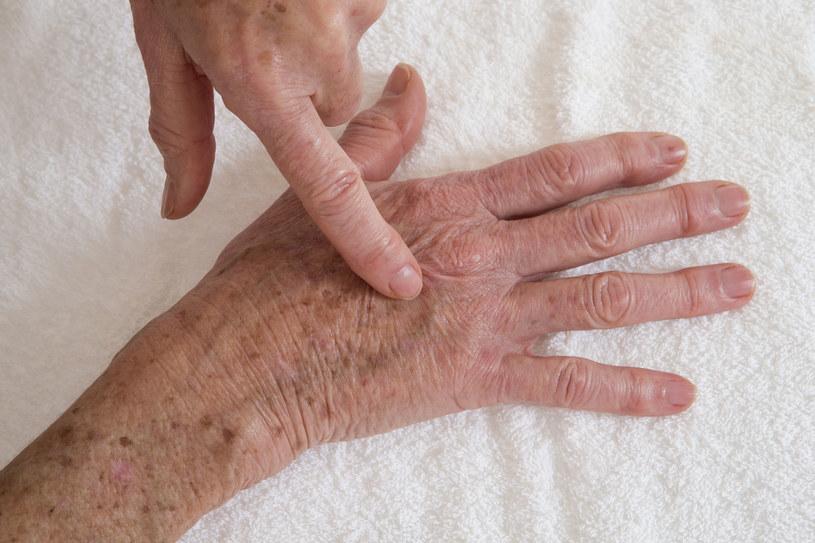 Plamek i przebarwień na dłoniach możesz się łatwo pozbyć /123RF/PICSEL