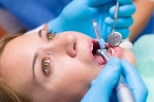 Plomby z tlenkiem grafenu to przyszłość stomatologii?