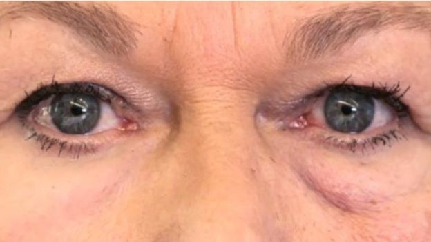 Po lewej oko z zastosowaną sztuczną skórą, po prawej bez /materiały prasowe