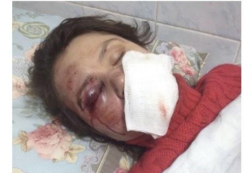 Pobita Tetiana Czornowił, fot. http://www.pravda.com.ua /