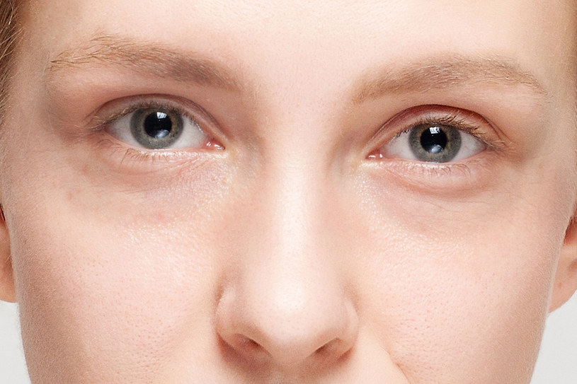 Podkrążone oczy i tzw. worki pod nimi najczęściej są wynikiem przemęczenia i niewyspania /©123RF/PICSEL