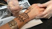 Polak leczy rany po tatuażach