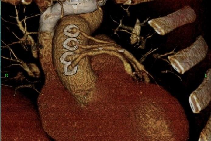 Pomostowanie tętnic wieńcowych - zdjęcie TK /©123RF/PICSEL