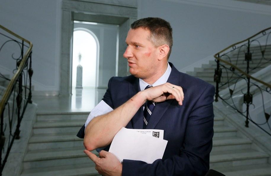 Poseł Przemysław Wipler prezentuje swoje obrażenia podczas konferencji w Sejmie /Paweł Supernak /PAP
