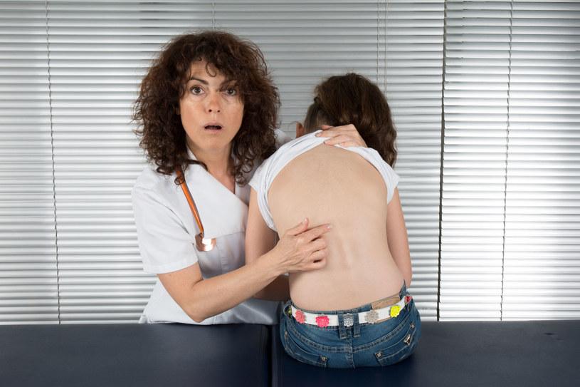 Postawę ciała można uznać za prawidłową oceniając ją z przodu, z tyłu i z boku /123RF/PICSEL