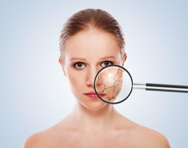 Problematyczna skóra wymaga odpowiedniej pielęgnacji /123/RF PICSEL