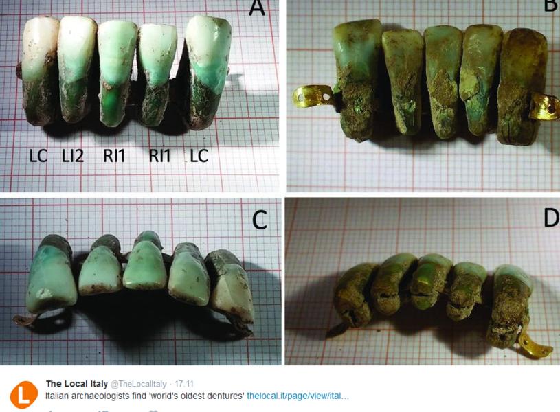 Proteza znaleziona w grobowcu rodziny Giunigi /Twitter