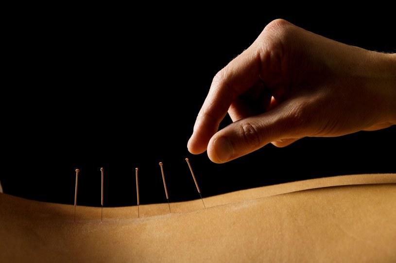 Przeciwwskazań do zastosowania akupunktury jest niewiele. To bezpieczna terapia /123RF/PICSEL
