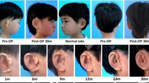 Przełom w medycynie rekonstrukcyjnej - naukowcy wyhodowali nowe uszy