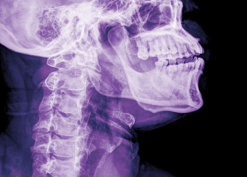Przeszczep głowy coraz bliżej? /©123RF/PICSEL
