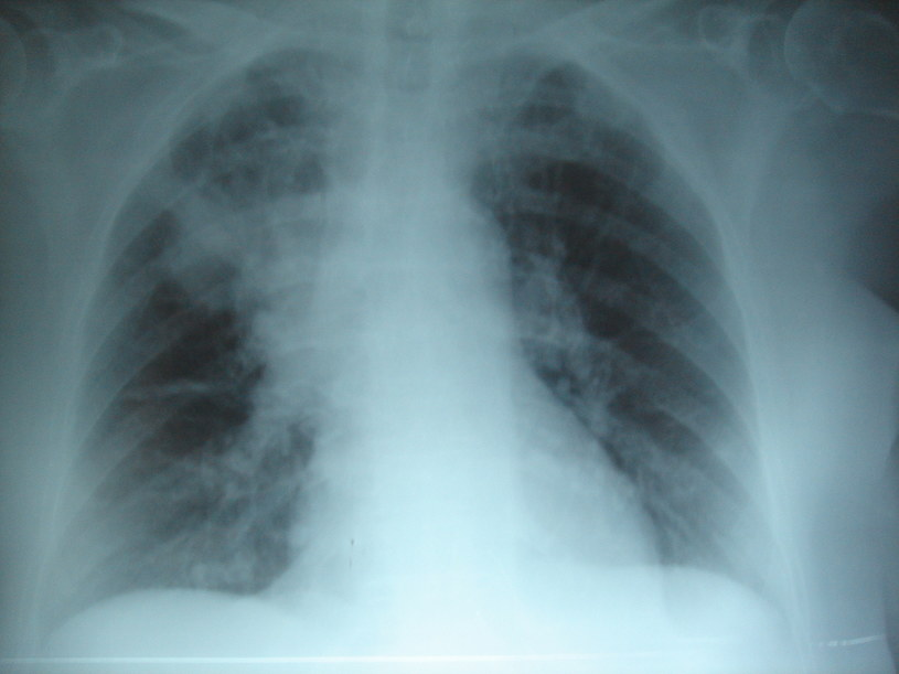 Przewlekłe zapalenie płuc ze zniszczeniem miąższu płucnego u osoby z mukowiscydozą /materiały prasowe