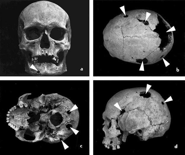 Przez długi czas archeolodzy zbierali jedynie czaszki /The New York Times