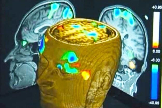 Przy pomocy fMRI można monitorować aktywność mózgu także pacjentów w stanie wegetatywnym /materiały prasowe