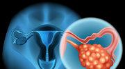 Rak jajnika - objawy i leczenie choroby