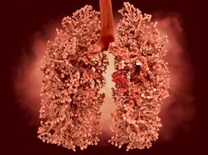 Rak płuca - standardy diagnostyki i leczenia w Polsce