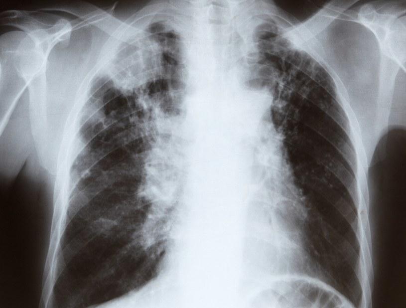 Raka płuc można uniknąć - wystarczy nie palić papierosów /© Glowimages