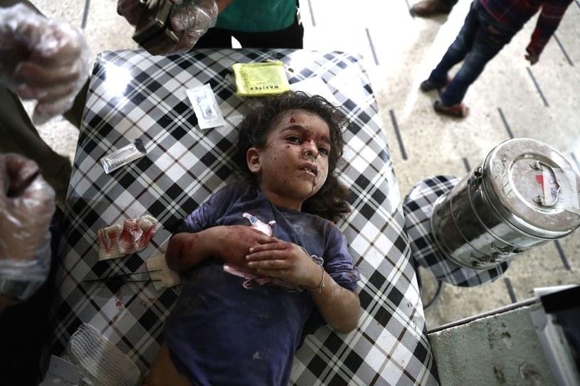 Ranna dziewczynka w syryjskim szpitalu /AFP