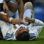 Real Madryt. Cristiano Ronaldo z kilkoma szwami po meczu z Deportivo