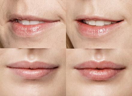 Restylane Lip Volume i Restylane Lip Refresh /materialy promocyjne /materiały promocyjne