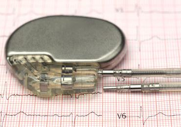 Rozrusznik serca - medyczny cud techniki