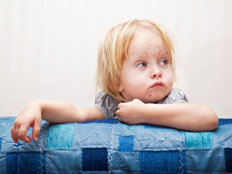 Ruchy antyszczepionkowe spowodowały wzrost zachorowań m.in. na Odrę /©123RF/PICSEL