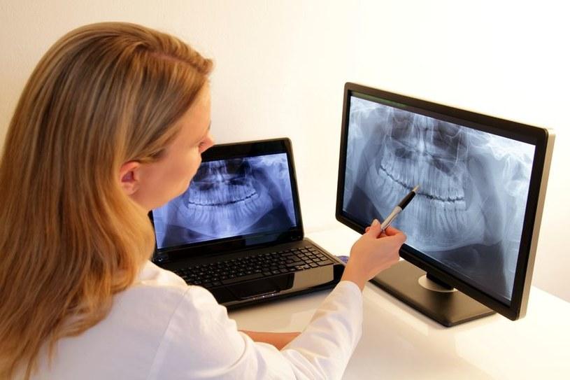 Rutynowe usuwanie zębów mądrości nie jest konieczne /©123RF/PICSEL
