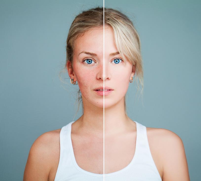Rysunek 2 W przypadku trądziku różowatego objawy mogą wywołać również problemy z nadmiernym ukrwieniem skóry twarzy/pixel /materiały promocyjne