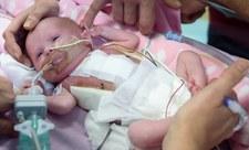 Rzadki przypadek medyczny - dziecko z sercem poza klatką piersiową