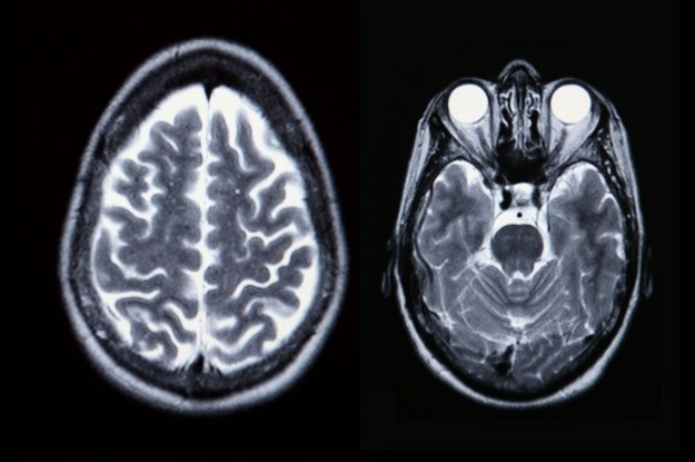 Skany mózgu mogą wskazać dysfunkcje połączeń nerwowych /©123RF/PICSEL