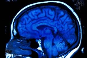 Słuchanie muzyki jest nagrodą dla mózgu