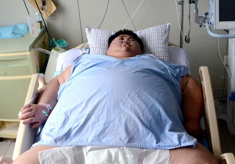 Sun Liang trafił do szpitala z wagą ponad 300 kg /AFP