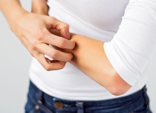 Swędzenie, wysypka, zaczerwienienia mogą być objawami alergii /123RF/PICSEL