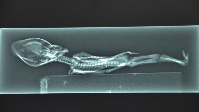 Szkielet Ata dokładnie przeskanowano i stwierdzono, że w chwili śmierci miał 6-8 lat /YouTube