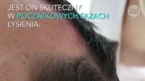 Tatuaż sposobem na łysienie?