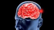 Tętniak mózgu - objawy i leczenie
